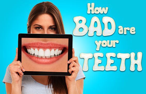 How Bad Are Your Teeth?